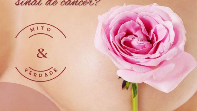 Nódulos nas mamas são sempre sinal de câncer?