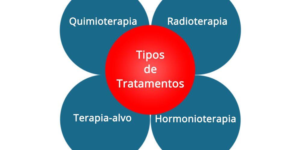 Quais são os tratamentos de câncer de mama
