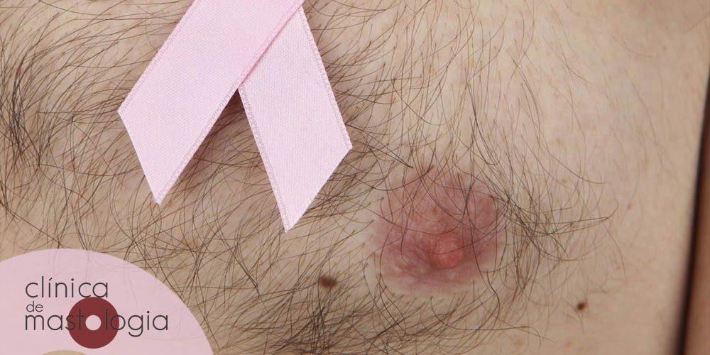Câncer de mama pode dar em homens, sim!