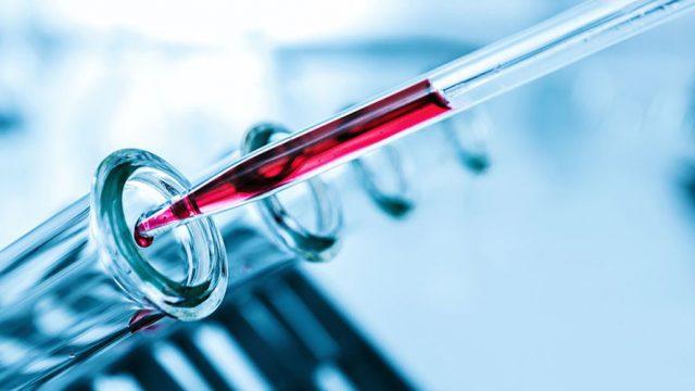 Exame de sangue ajuda no diagnóstico precoce de câncer de mama, aponta estudo