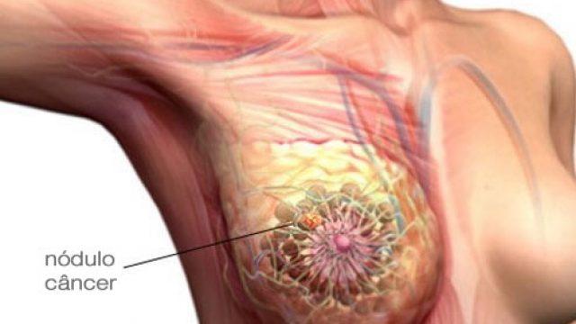 O risco de desenvolver câncer de mama aumenta com a idade?